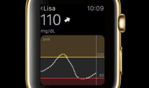 Blutzucker-Kontrolle per Apple Watch und Dauersensor