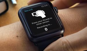 Überleben dank Apple-Watch: Armband AliveCor Kardia gegen Herzinfarkt