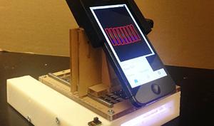 Forscher entwickeln mobiles Labor mit iPhone-Unterstützung für Krebsuntersuchungen