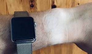 Bräunungsstreifen unter der Apple Watch? Das sollten Sie beim Handgelenkswechsel beachten