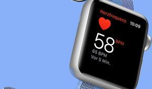 Erkennt die Apple Watch Herzrhythmusstörungen? Apple & Stanford versuchen es herauszufinden
