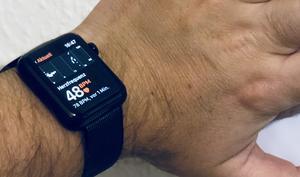 Wissenschaftler verblüfft: Apple Watch kann Bluthochdruck und Schlafapnoe diagnostizieren