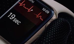 Apple Watch 4: So wird sich die EKG-Funktion in Deutschland aktivieren lassen