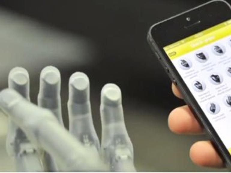 iPhone steuert Hand-Prothese