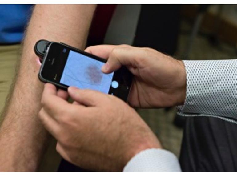 DermoScreen: iPhone-App erkennt Hautkrebs