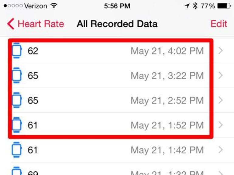 Eigentlich soll die Apple Watch die Herzfrequenz des Trägers der Uhr alle 10 Minuten überprüfen
