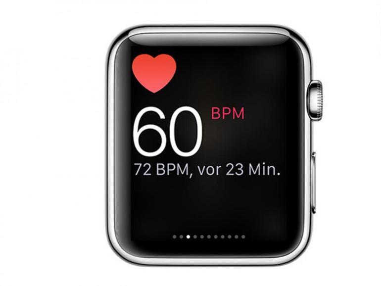 Ein extrem hoher Puls von über 200 veranlasste einen Kanadier, die Rettung zu rufen - gemessen hatte er ihn auf der Apple Watch