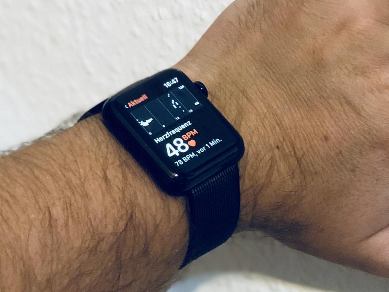 Die Apple Watch kann offenbar Schlafapnoe und Bluthochdruck nachweisen