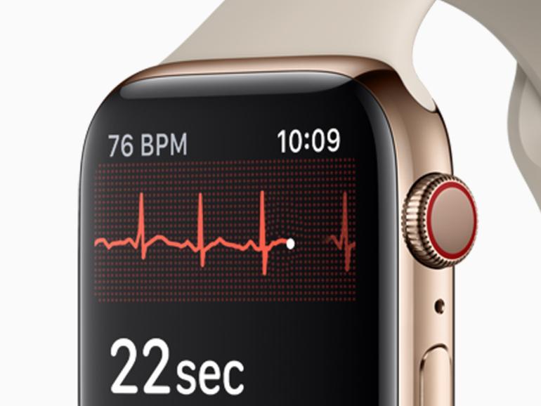 Elektrischer Sensor auf der Unterseite und Finger auf der digitalen Krone erlauben ein EKG