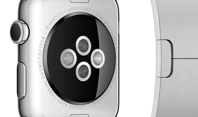 Apple Watch: Ominöser Anschluss an Smartwatch aufgetaucht - Gravur, um Apples Mode-Accessoire zu peronalisieren