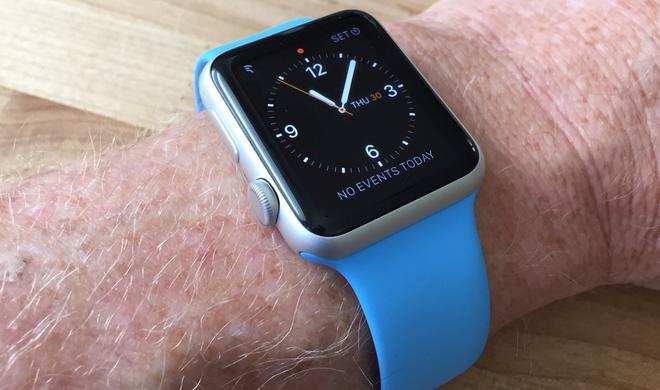 """Apple Watch: Das sind die Vorteile, wenn man die Smartwatch """"falsch herum"""" trägt"""