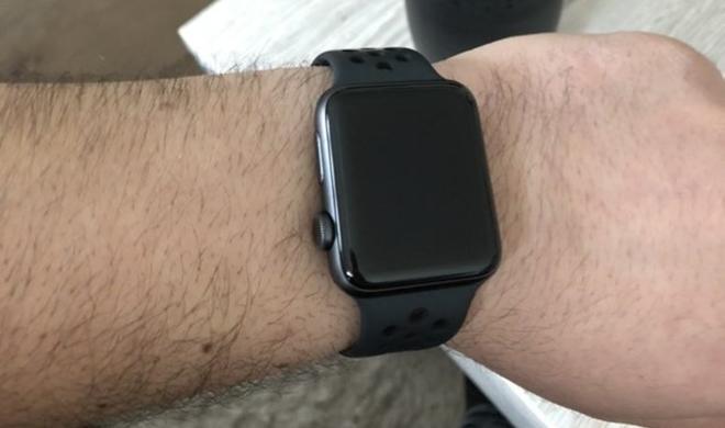 Apple Watch: Darum tragen Anwender die Krone zum Körper hin
