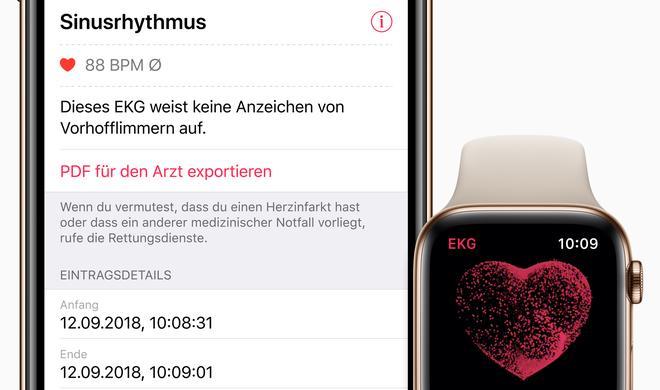 watchOS 5.2 veröffentlicht: EKG-Funktion endlich auch in Deutschland!