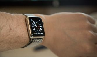 Überfällige Entfernung: So entfernst du nicht benötigte Checks von deiner Apple Watch