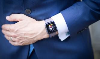 Apple Watch: So ordnen Sie die Zifferblätter für den Schnellzugriff